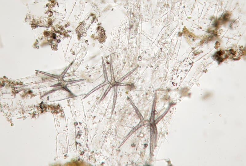 Het microscopische leven, spiked algenegel, waarschijnlijk diatomeeënalgen Zoetwaterfytoplankton door microscoop stock afbeeldingen