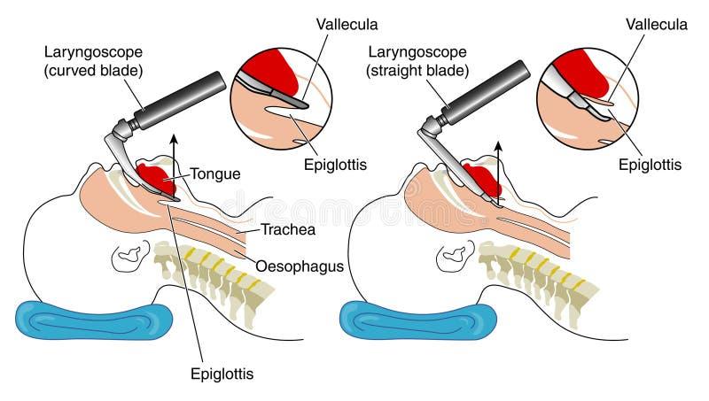 Het opnemen van een laryngoscoop vector illustratie