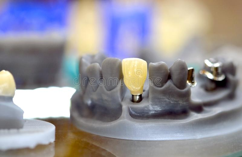 Het opvouwbare die kaakmodel met tanden en de gaten voor implant bekronen steunpunt op een 3d printer wordt gedrukt stock foto