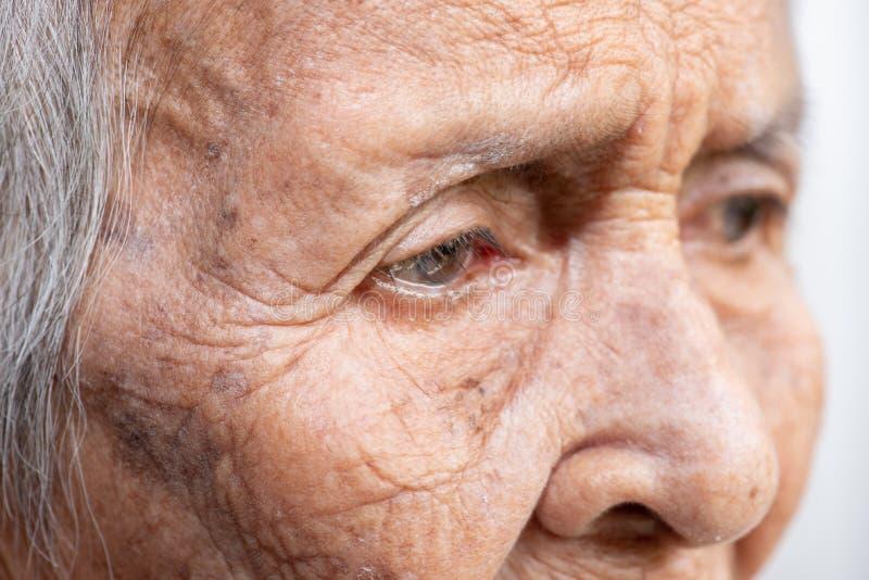 Het oude vrouw ` s eenzaam felling zwakzinnigheid en Alzheimer's-ziekte stock fotografie