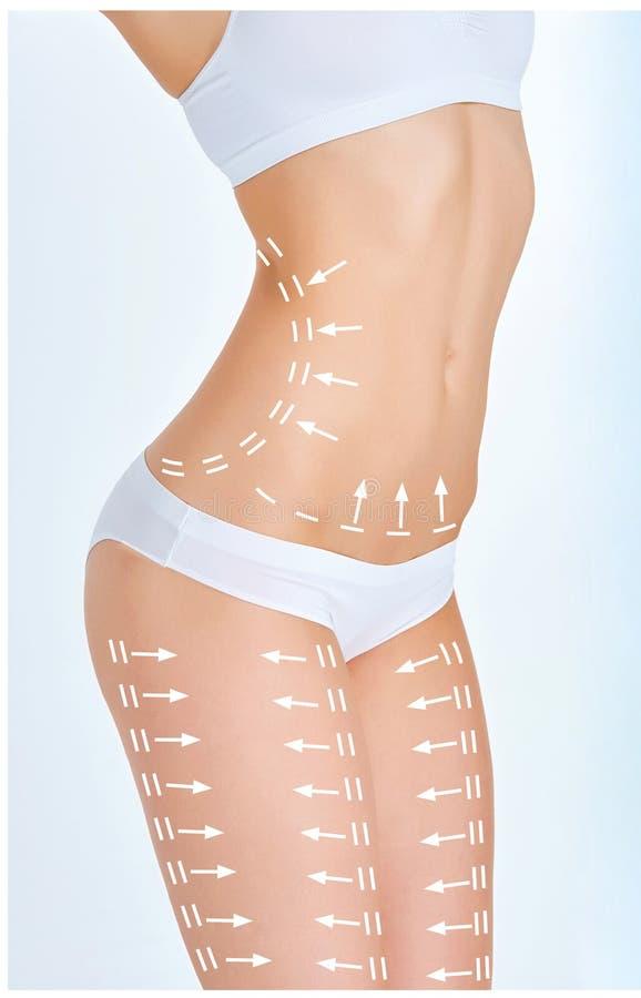 Het plan van de celluliteverwijdering Witte noteringen op jong vrouwenlichaam stock afbeelding