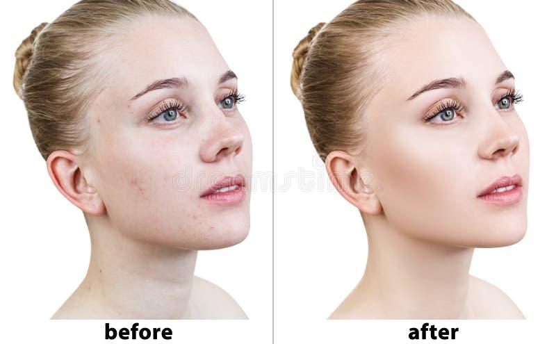 Het portret van vrouw retoucheert vóór en na stock foto
