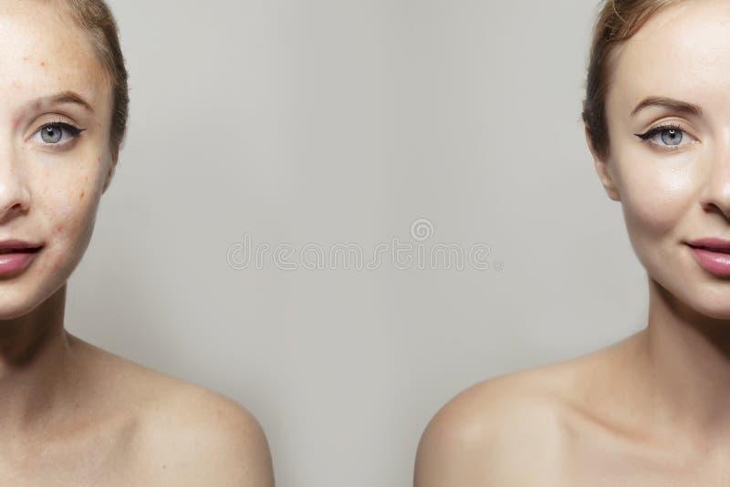 Het portret van het vrouwengezicht met duidelijke en pimpled huid stock afbeeldingen