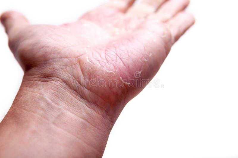 Het probleem met vele mensen - eczema op hand Geïsoleerde achtergrond stock fotografie