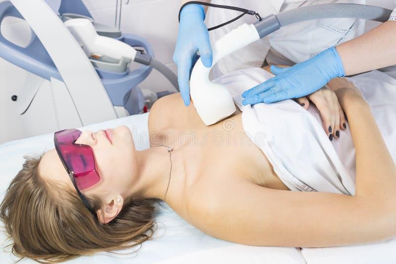 Het proces van laserontharing van vrouwelijk lidmaat stock afbeeldingen