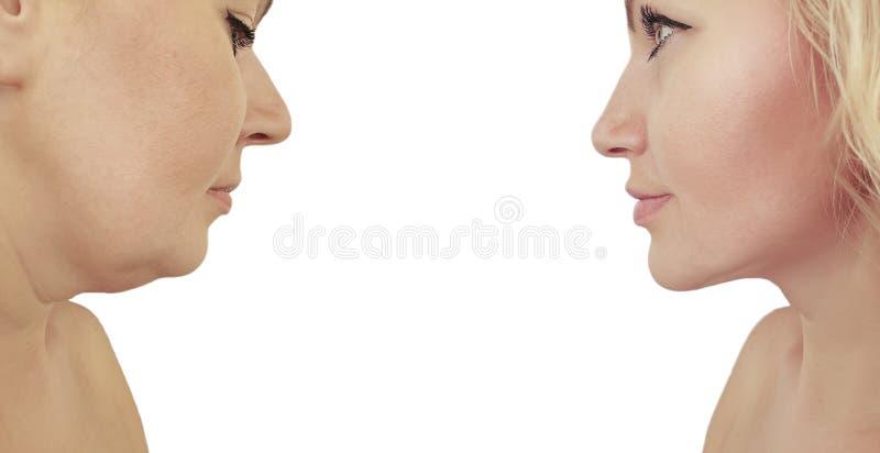 het resultaat van de vrouwenonderkin voordien na procedureseffect stock fotografie
