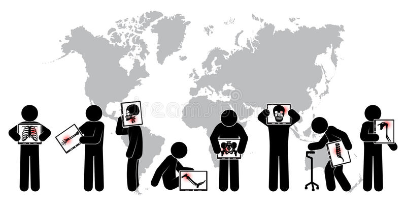 Het scherm van de de greepmonitor van de stokmens: toon skelet, wereldkaart (Gezondheidszorgconcept Wereldwijd) (Longtuberculose, stock illustratie