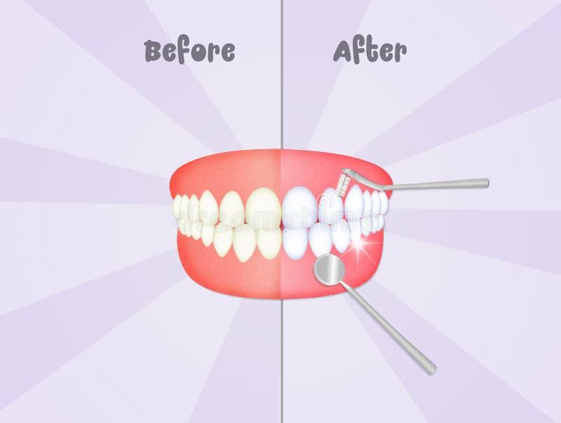 Before and after het schoonmaken van de tanden stock illustratie