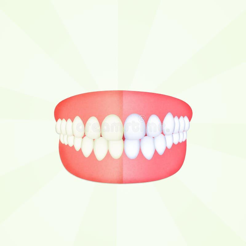 Before and after het schoonmaken van de tanden royalty-vrije illustratie