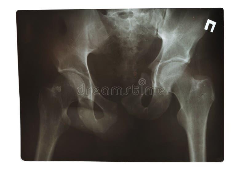 Het schot van de röntgenstraal royalty-vrije stock fotografie