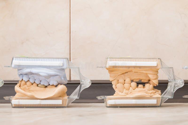 Het tand gietende pleister van gipsmodellen stock afbeeldingen