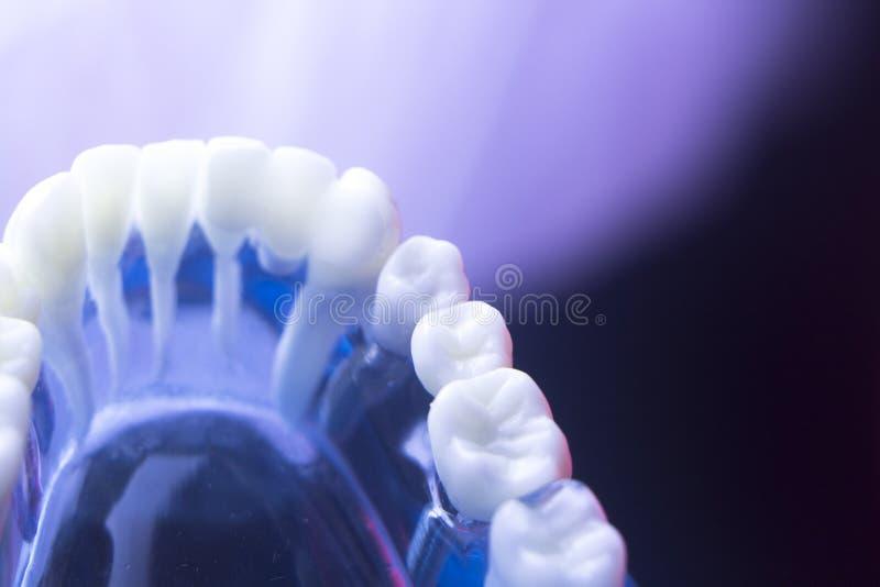 Het tandbederf van de tandgezondheid stock fotografie