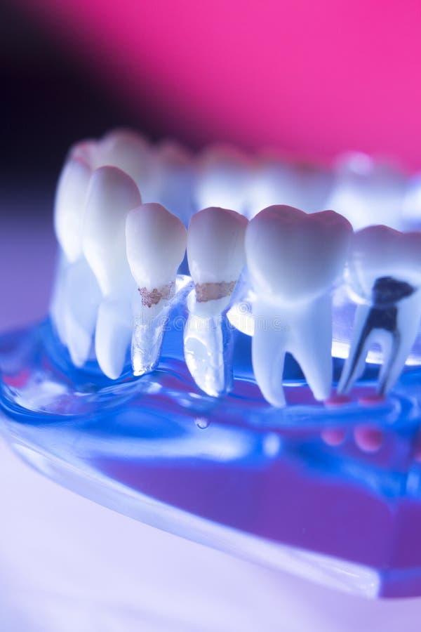 Het tandkanaal van de tandwortel stock foto's