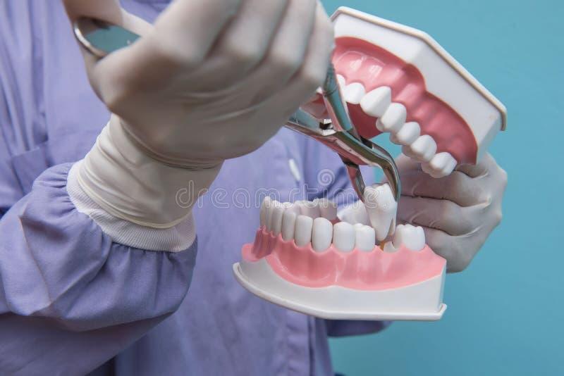 Het tandmodel wordt gebruikt aan Demonstratie van tandextractie door artsen royalty-vrije stock foto's
