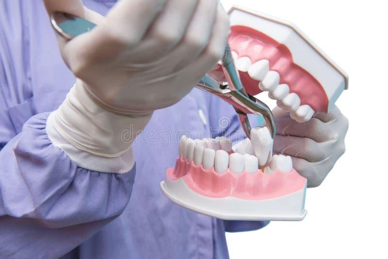 Het tandmodel wordt gebruikt aan Demonstratie van tandextractie door artsen Geïsoleerdj op witte achtergrond stock foto