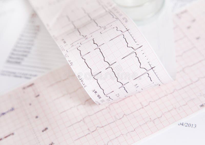 Het tariefcontrole van het electrocardiogramhart stock afbeelding
