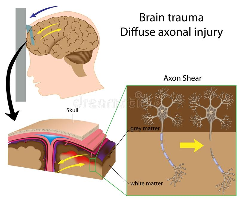 Het trauma van hersenen met axon scheerbeurt vector illustratie