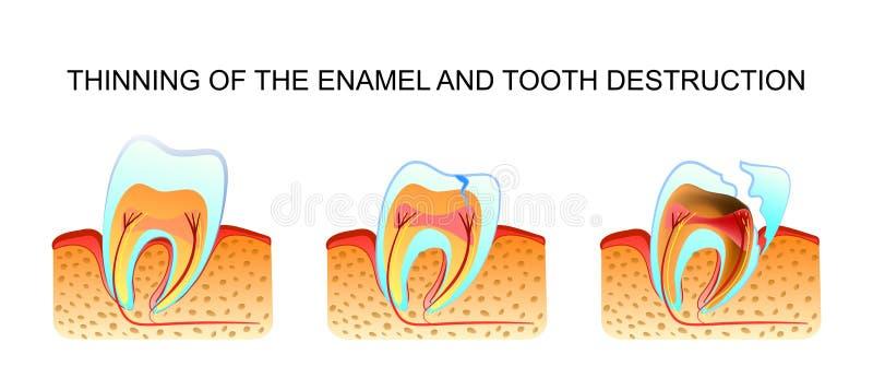 Het verdunnen van de email en tandvernietiging stock illustratie