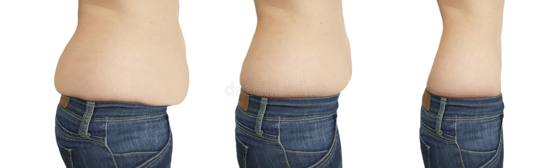 Het vermageringsdieet van de vrouwenbuik vóór verliest na het retoucheren van liposuction royalty-vrije stock foto's