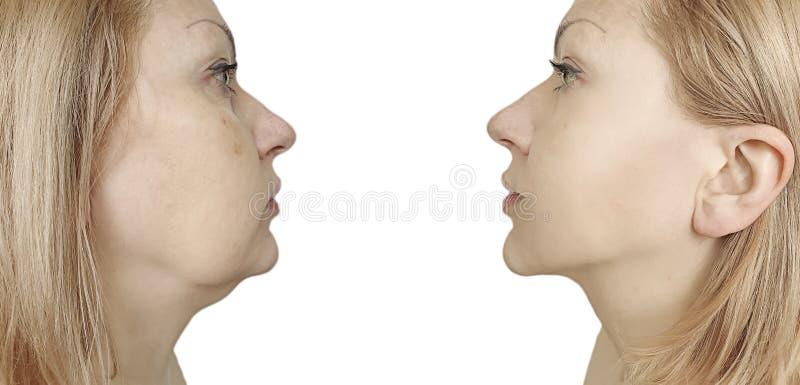 Het verzakkende plastic probleem van de vrouwenonderkin before and after procedurebehandeling royalty-vrije stock foto