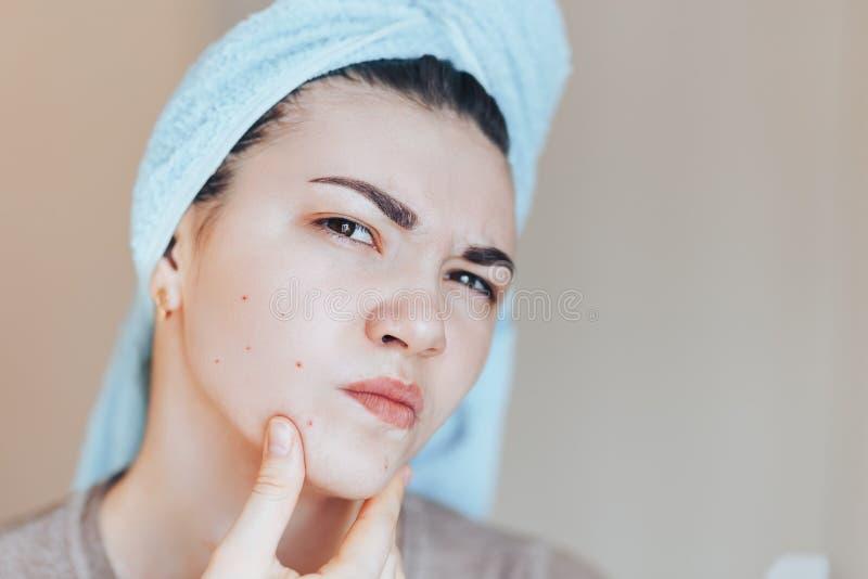 Het voorhoofd fronsend meisje in schok van haar acne met een handdoek op haar hoofd De foto's van het de zorgconcept van de vrouw royalty-vrije stock afbeeldingen