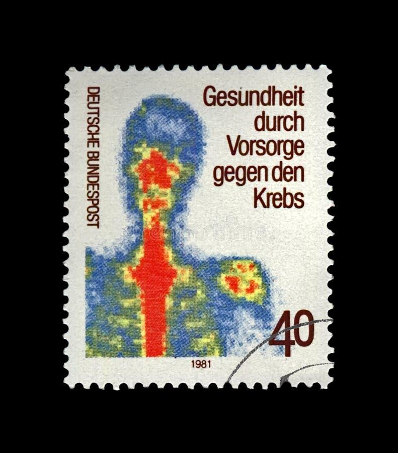 Het vroege onderzoek van de kankeropsporing voor de preventie van menselijke ziekte, Duitsland, circa 1981 stock fotografie