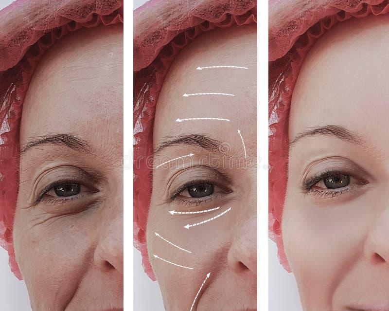 Het vrouwelijke volwassen gezichts rijpe geduldige verschil van de rimpelsverjonging before and after procedures, pijl royalty-vrije stock afbeeldingen
