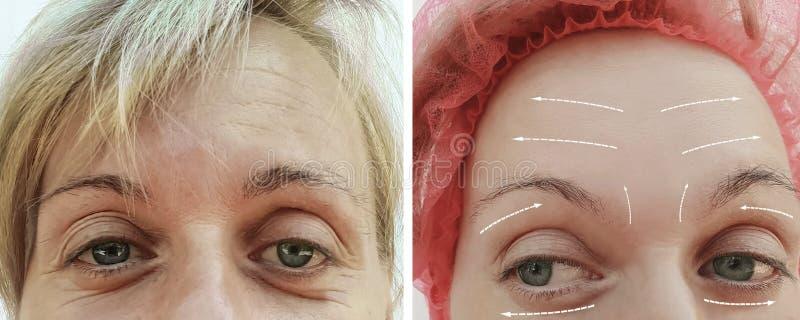 Het vrouwelijke volwassen van de de verjongingsvuller van de rimpelsverwijdering rijpe geduldige verschil before and after proced stock afbeeldingen