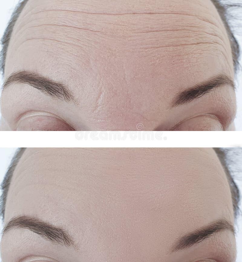 Het vrouwenvoorhoofd rimpelt before and after correctie stock foto