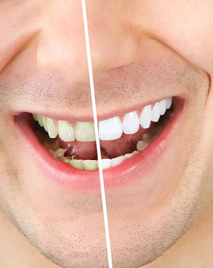 Het witten van de tand