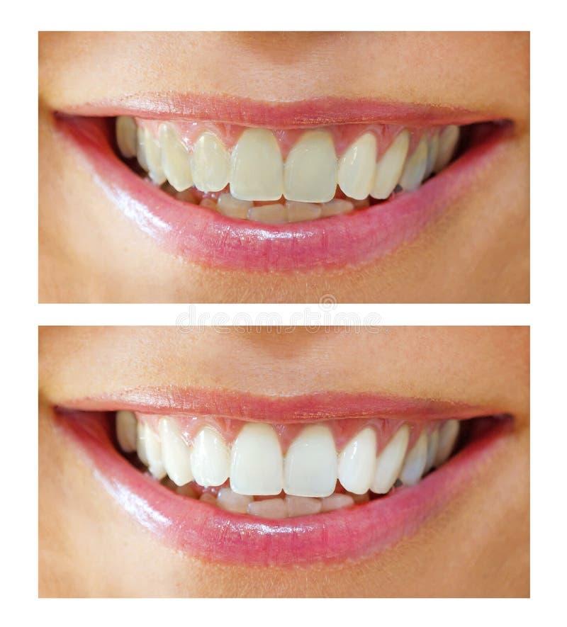 Het witten van de tand - voordien, daarna royalty-vrije stock afbeeldingen