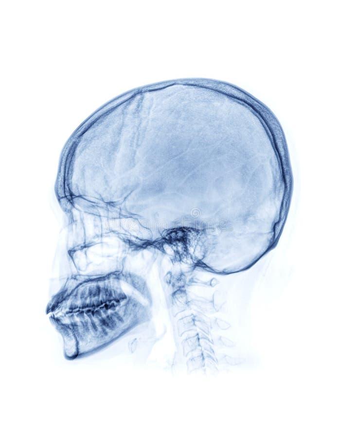 Het ZijdieWeergeven van de röntgenstraalschedel op witte Achtergrond wordt geïsoleerd stock afbeelding