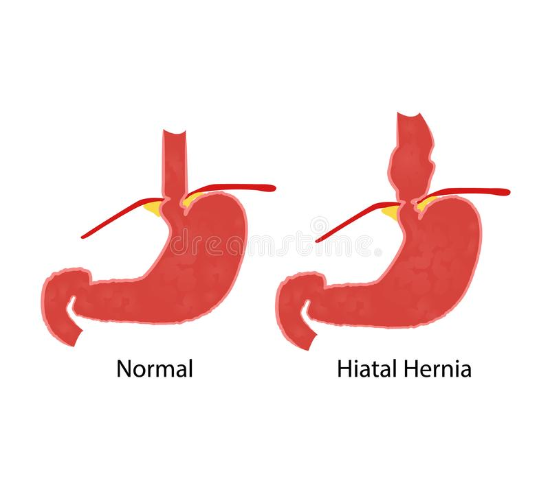 Hiatal hernia and normal anatomy of the stomach and esophagus. Vector illustration stock illustration