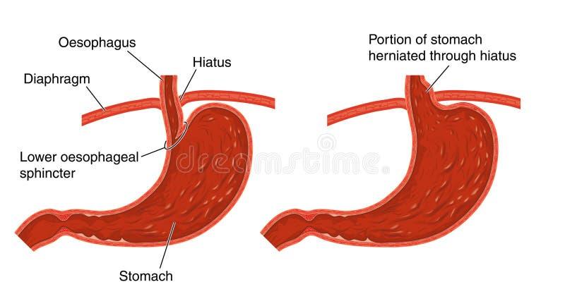 Hiatus hernia stock illustration