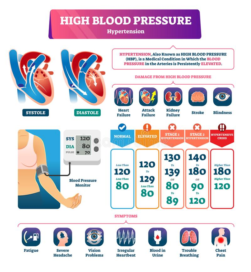 High blood pressure vector illustration. Labeled systole explanation scheme vector illustration