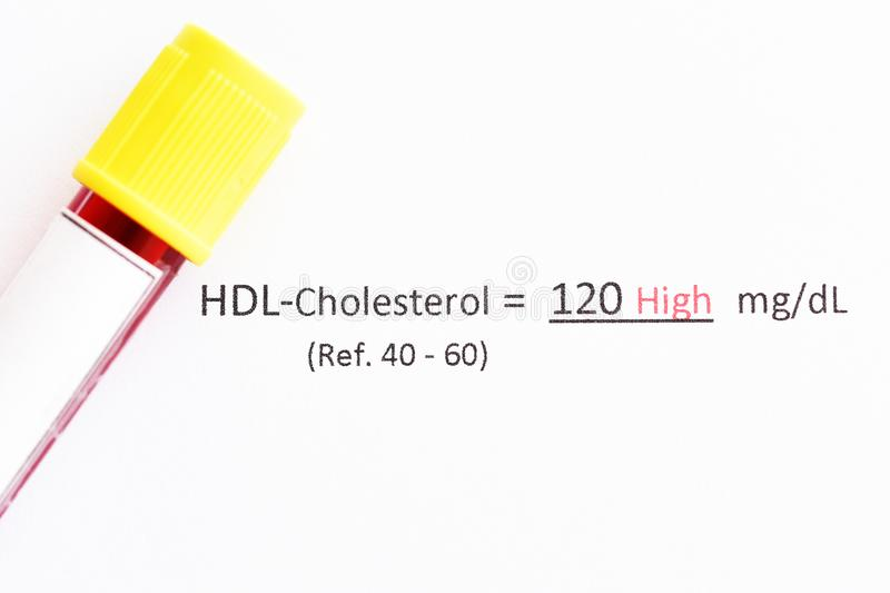 High level HDL-cholesterol test result. With blood sample royalty free stock images