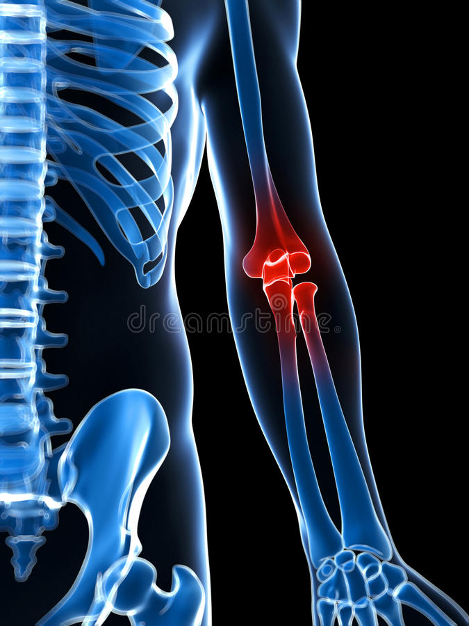 Download Highlighted elbow stock illustration. Image of body, inflamed - 28961841