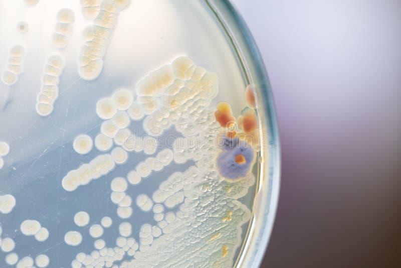 Hintergr?nde von Eigenschaften und von unterschiedlicher geformter Kolonie von Bakterien und Form, die auf N?hrbodenplatten w?chs lizenzfreie stockfotografie