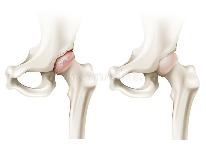 Hip arthritis vector illustration