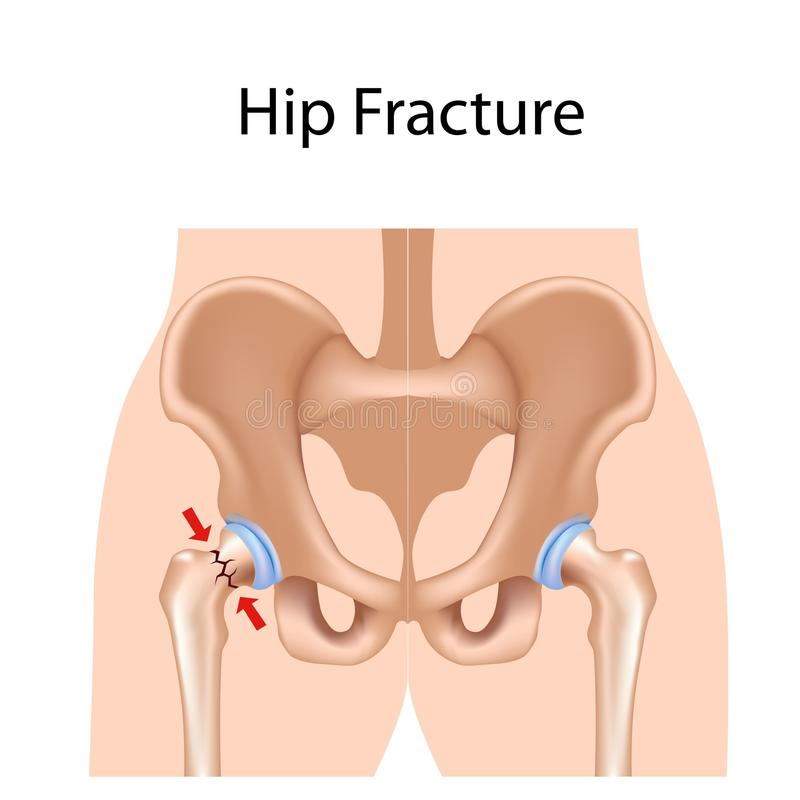Free Hip Fracture Stock Photography - 21866382