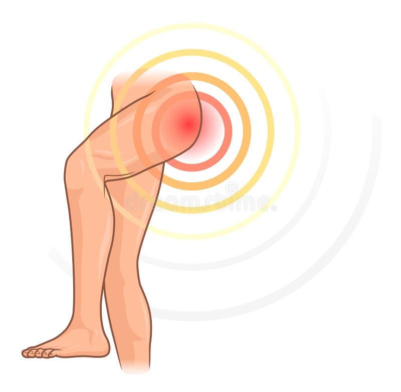 Hip pain. Illustration isolated on white background royalty free illustration