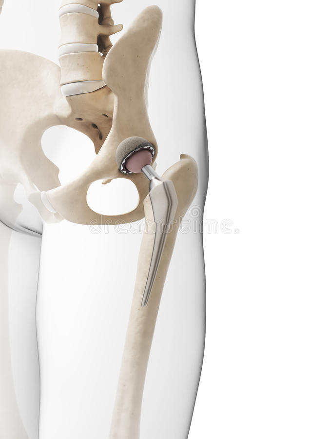 Hip replacement. 3d rendered illustration of a hip replacement vector illustration