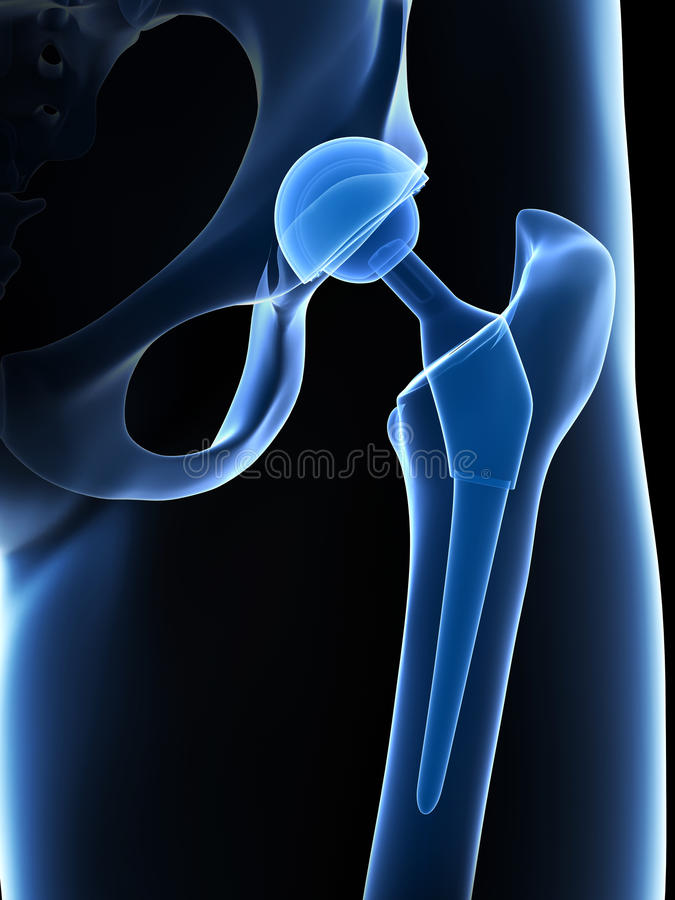 Hip replacement. 3d rendered illustration of a hip replacement royalty free illustration