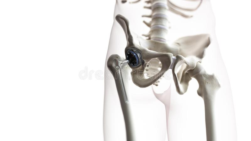 A hip replacement. 3d rendered medically accurate illustration of a hip replacement stock illustration