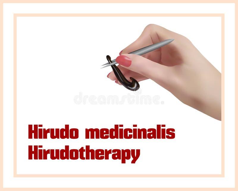 Hirudotherapy Behandling med blodiglar stock illustrationer