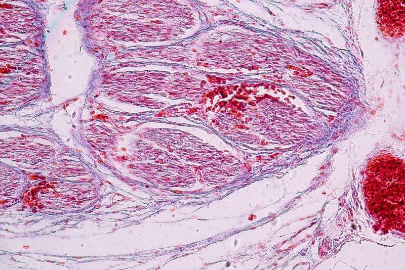 Histología del estudio de humano, hueso del tejido debajo del microscópico fotos de archivo