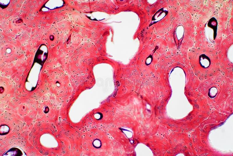 Histología del tejido compacto humano del hueso bajo opinión del microscopio para foto de archivo