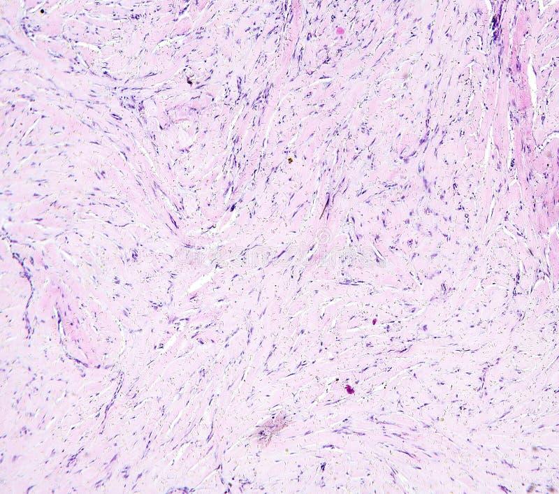 Histología del tejido humano, tejido conectivo de la demostración, degeneración hialina del bazo según lo visto debajo del micros imágenes de archivo libres de regalías