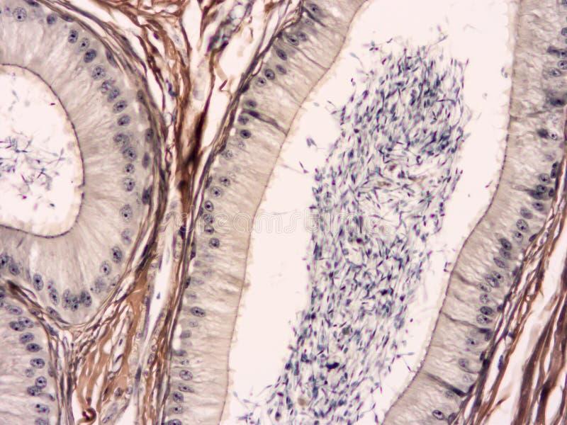 Histologi av det mänskliga silkespappret royaltyfria foton