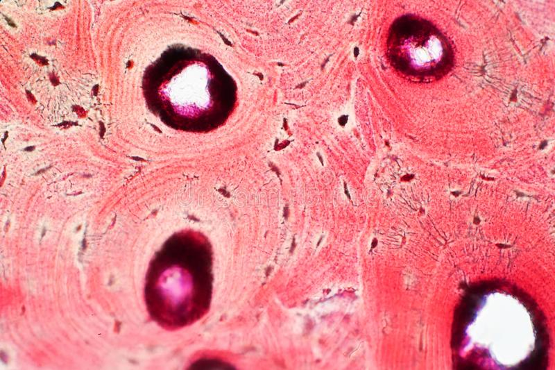 Histologi av silkespappret för människaöverenskommelseben under mikroskopsikten för royaltyfria bilder